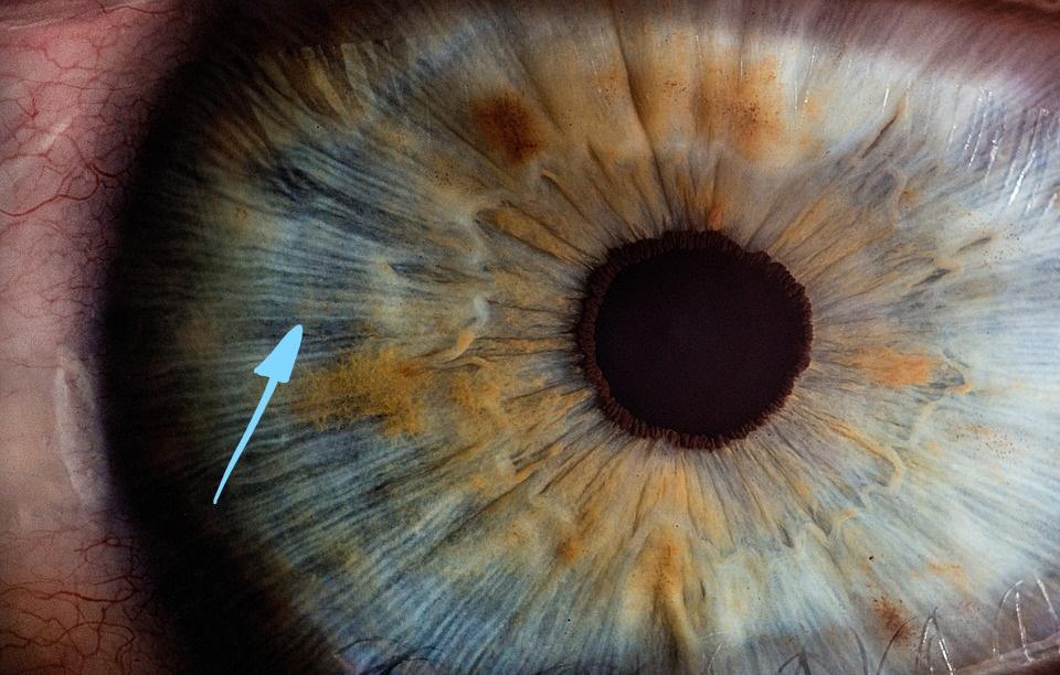 Iris trame serrée